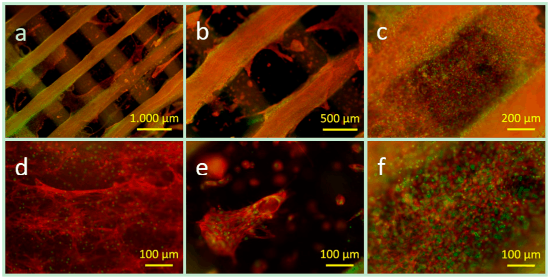 Fluorescence microscope images (a–f) of the actin cytoskeleton (red) and the cell nuclei (green) of ST2 cells in a PCL-PEG ADA-GEL construct after 28 days of incubation of different magnification: (a,b) overview images; (c) densely packed area of the cells covering both materials; (d) cell morphology on the hard phase; (e) cell agglomerate and spread single cells in hydrogel; and (f) densely packed area of cells (hydrogel phase) [1]
