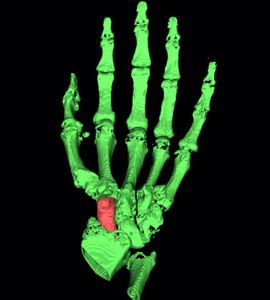 1c) Segmentation of the scaphoid bone