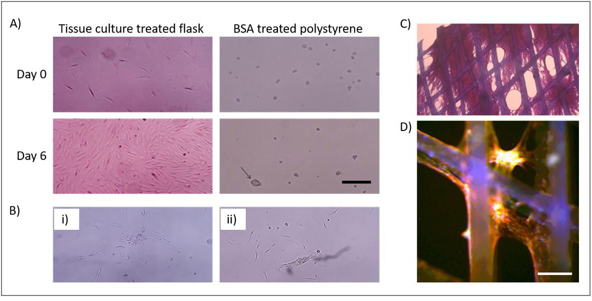 Seeding of MEW scaffolds with mesynchymal stem cells